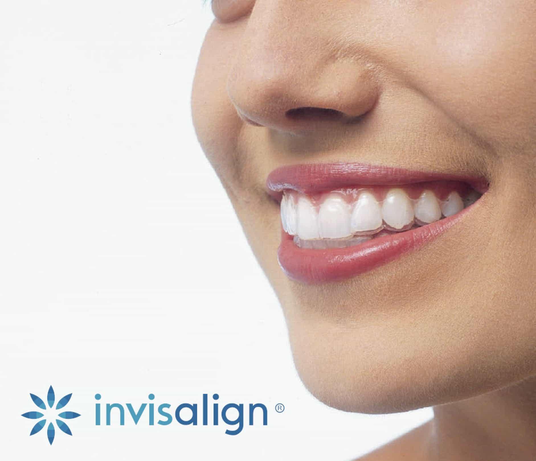 ortodoncia invisible girona invisalign